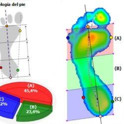Análisis biomecánico 3D